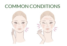 Common Skin Conditions advice