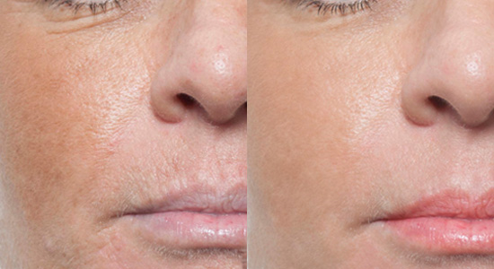 Advanced Microneedling with Rejuvapen