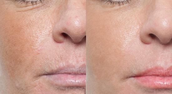 Skin needling | DermNet New Zealand