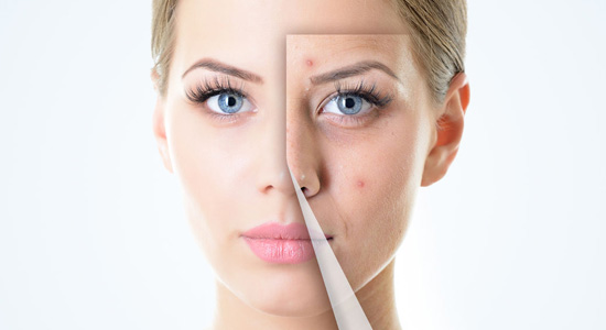 Ant-aging Treatments at Eden Skin & Laser Clinic