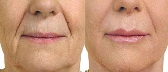 Derma Fillers at Eden Skin & Laser Clinic