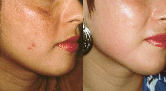 Microdermabrasion at Eden Skin & Laser Clinic