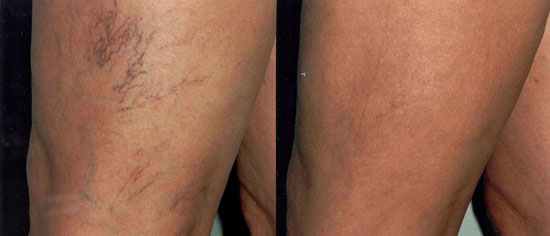 Sclerotherapy at Eden Skin & Laser Clinic