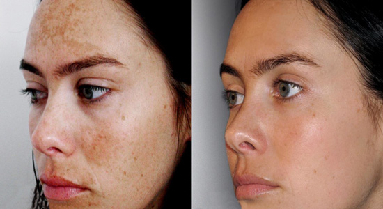 Skin Peel at Eden Skin & Laser Clinic