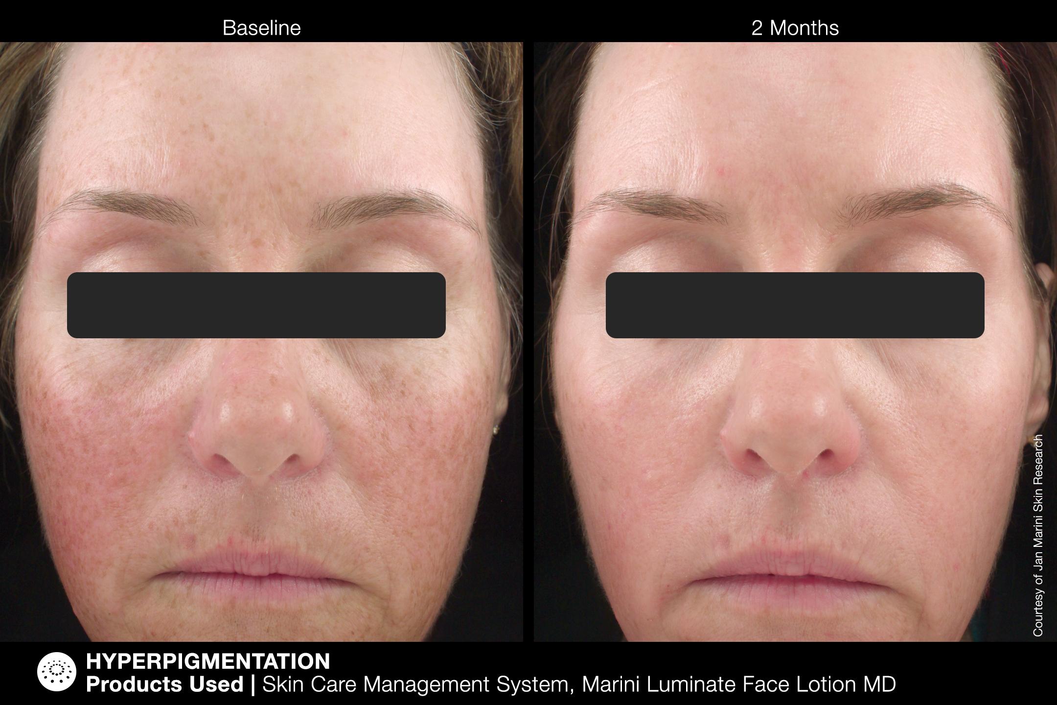 Marini Luminate Face Lotion Image (8)