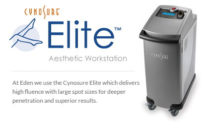 Cynosure Elie at Eden Skin & Laser Clinic