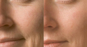 Image O2 Facial at Eden Skin & Laser Clinic