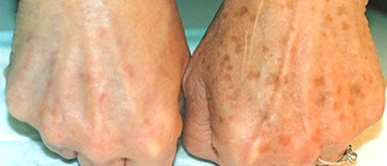 Pigmentation correction at Eden Skin & Laser Clinic